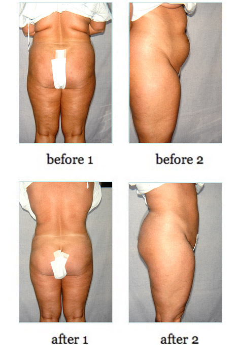 liposuction6
