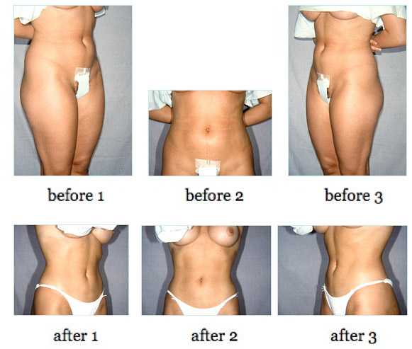 liposuction7