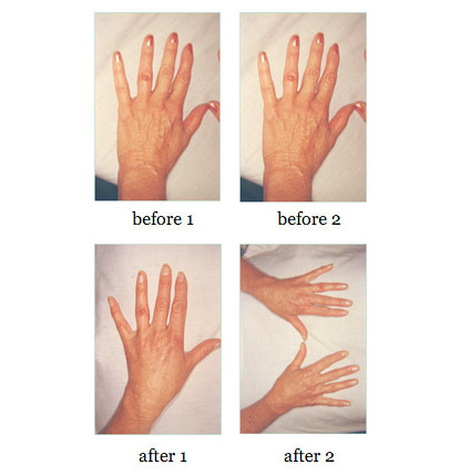 hand-rejuvenation before and after