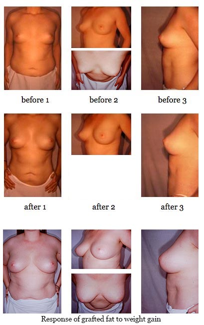 Breast Enlargement Through Fat Grafting before and after