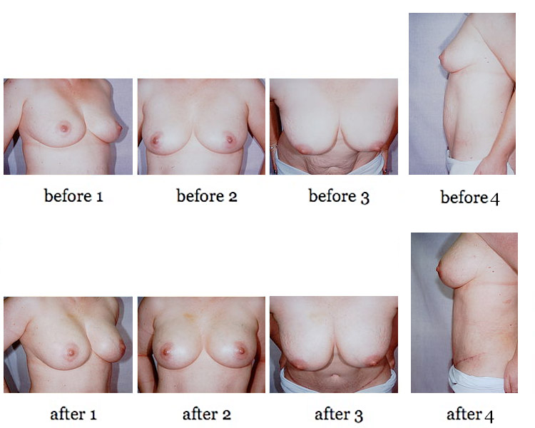 breast-aug-fat-4