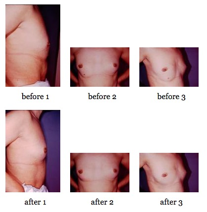 breast deformities before and after