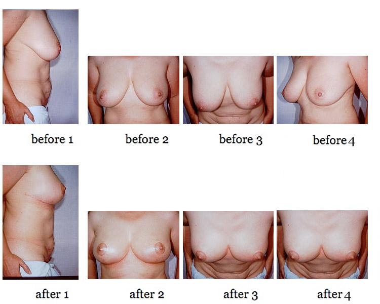 breast-lift-8