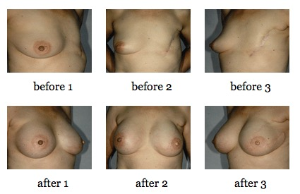 breast reconstruction surgery before and after