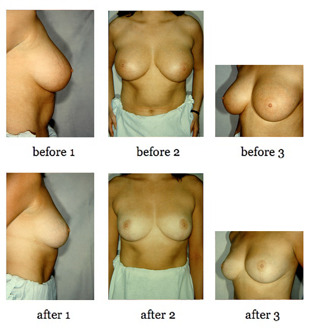 breast-lift-8