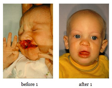 cleft-lip-repair