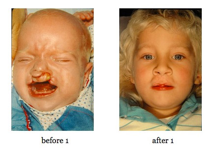 cleft-lip-repair4