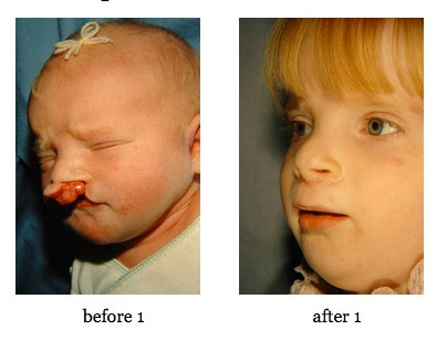 cleft-lip-repair5