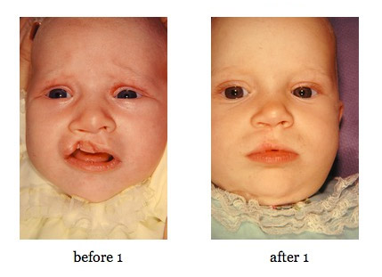 cleft-lip-repair6