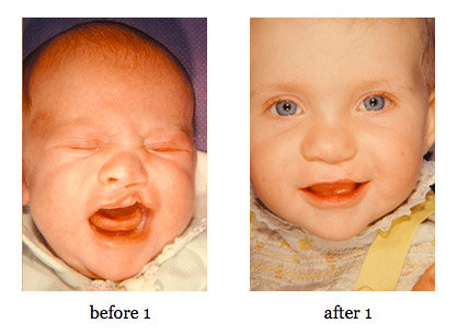 cleft-lip-repair7
