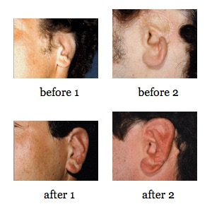 Ear Reconstruction before and after