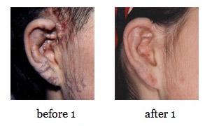 ear-reconstruction6