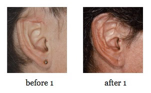 ear-reconstruction8