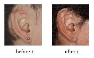 ear-reconstruction8