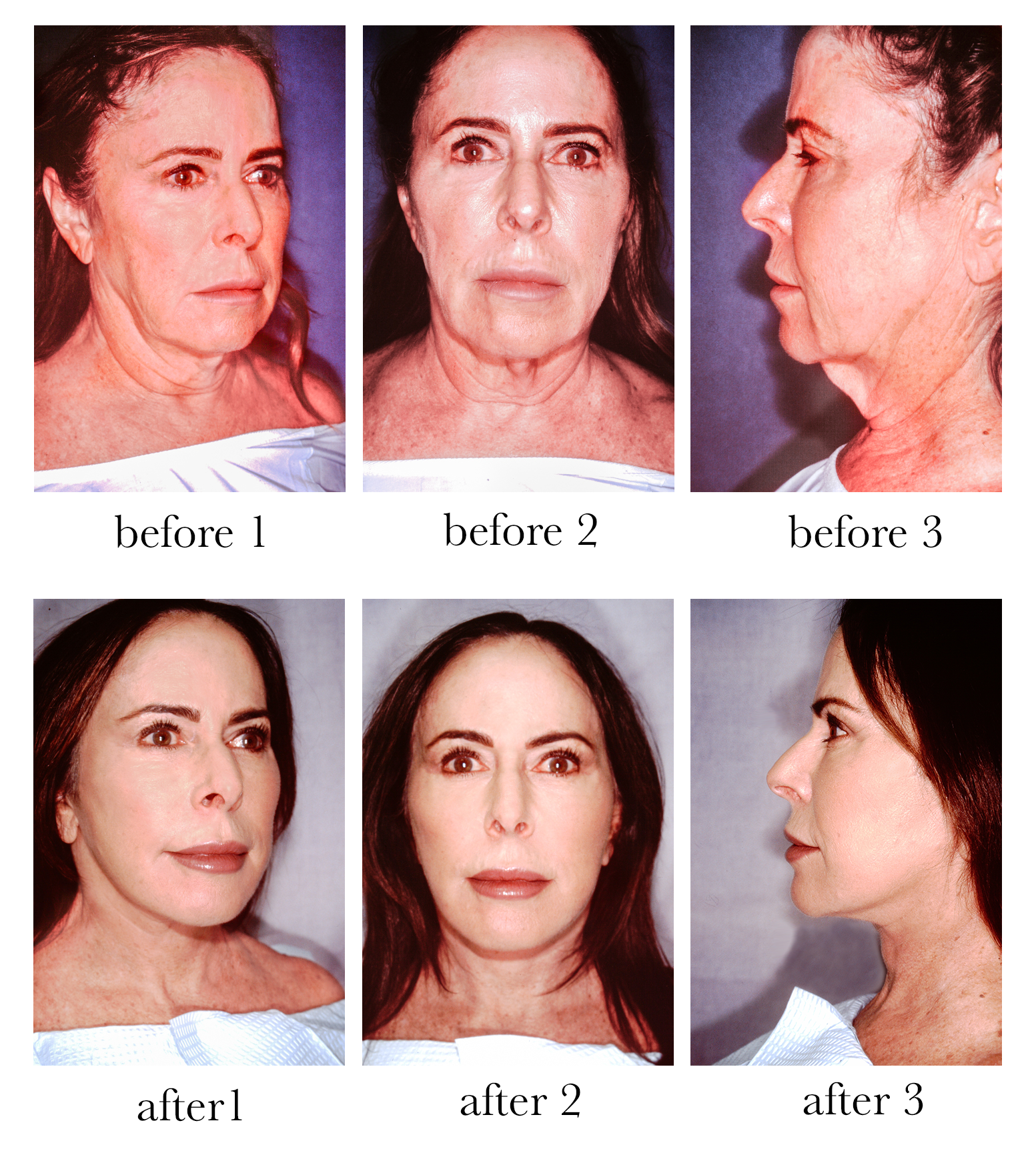 Before and after pictures of a facelift on a female
