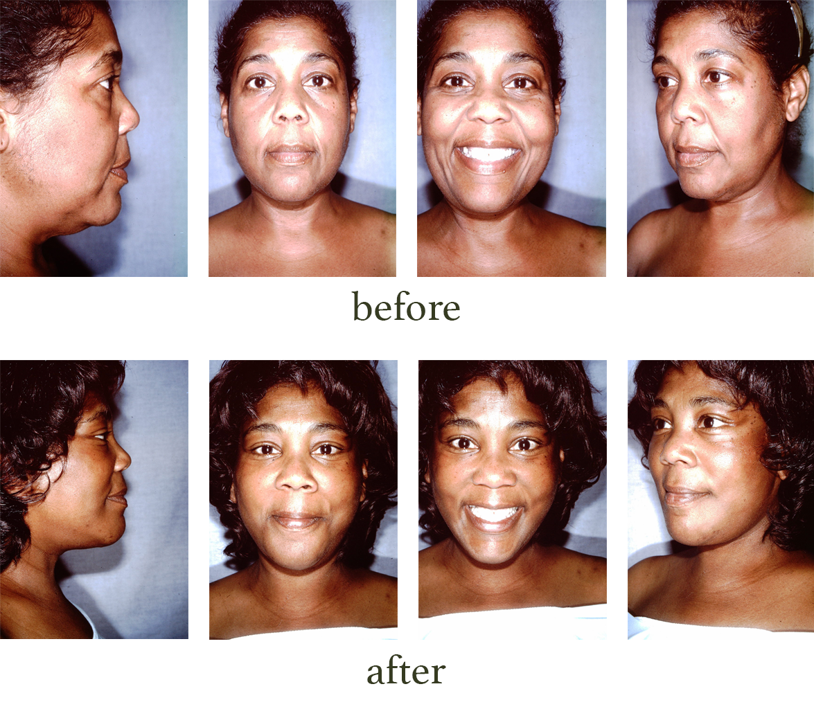 Before and after pictures of a facelift procedure
