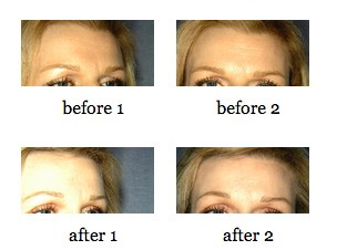 Eyebrow Lift, Forehead Lift, or Brow Lift before and after