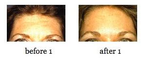 forehead-lift1