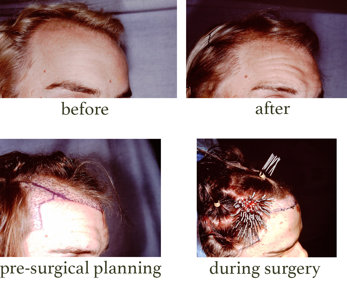 Before and after pictures of hair transplant surgery