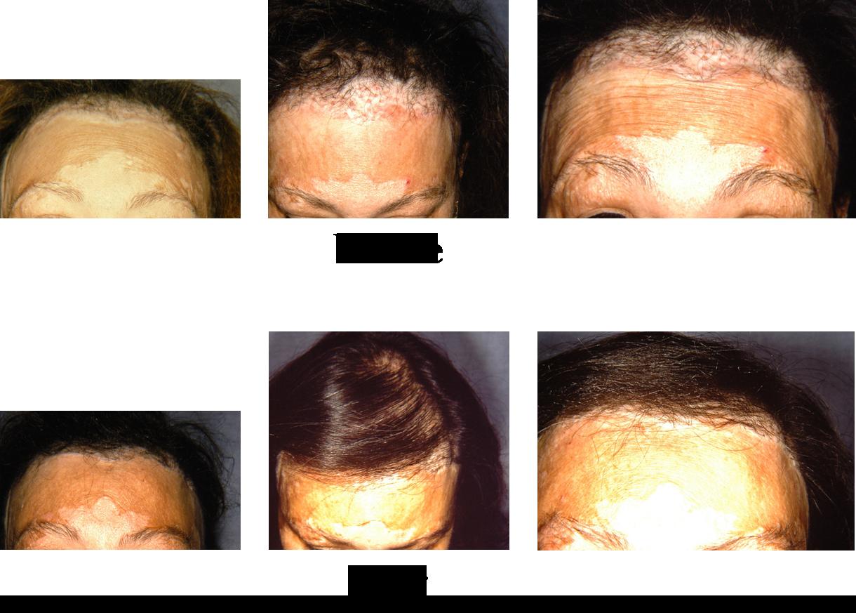 Hair Restoration Surgery