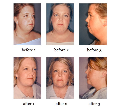 Facial Implants before and after