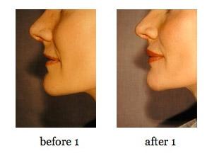 lip-augmentation1