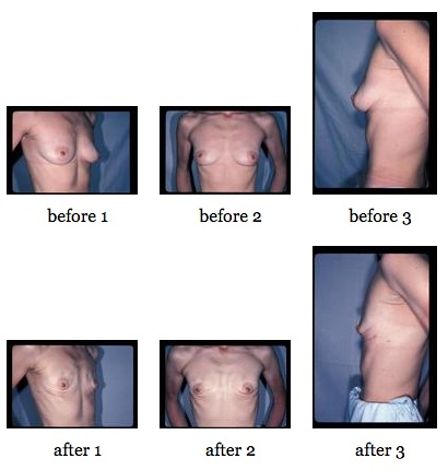 Nipple Sparing Mastectomy before and after