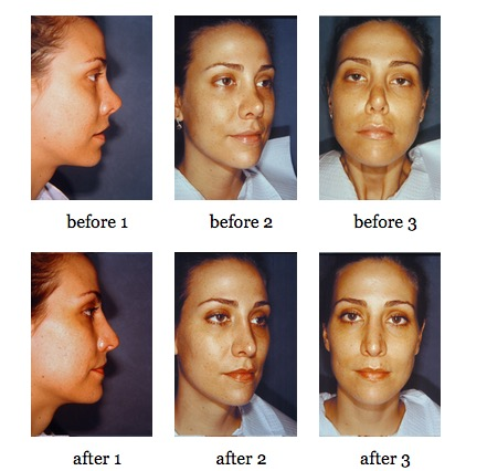Secondary Rhinoplasty before and after