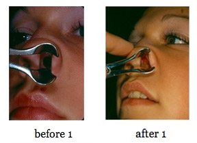 septum-repair