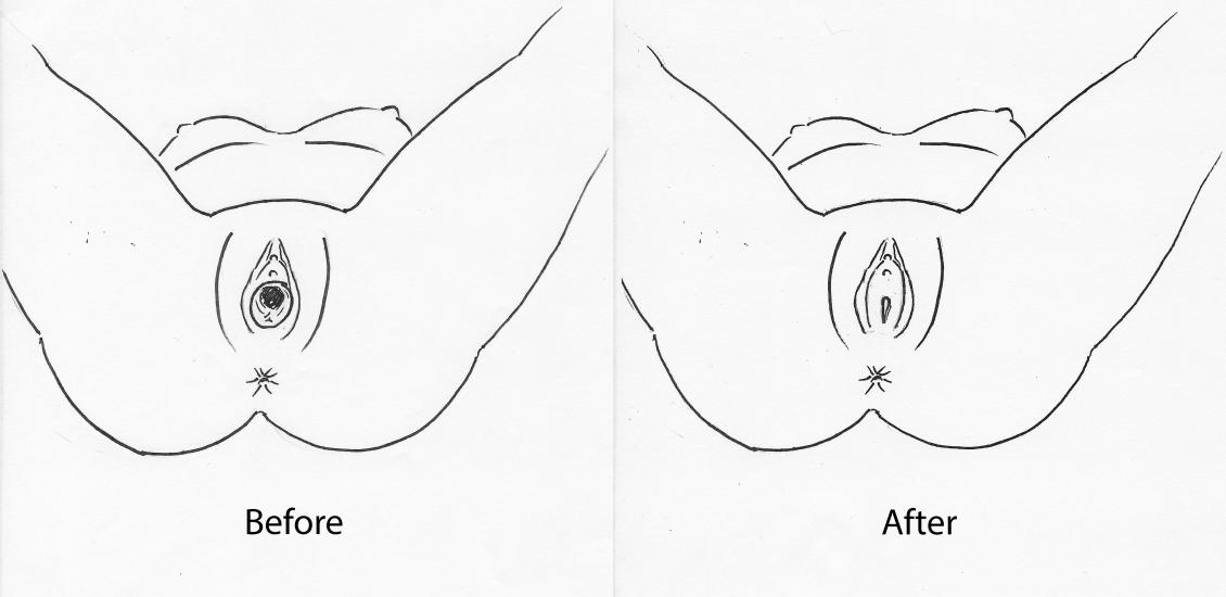 vaginaplasty