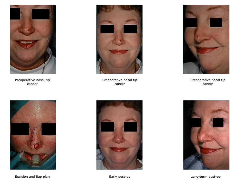 nasal-tip1