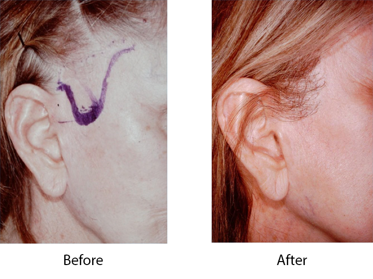 Hair loss from bad facelift
