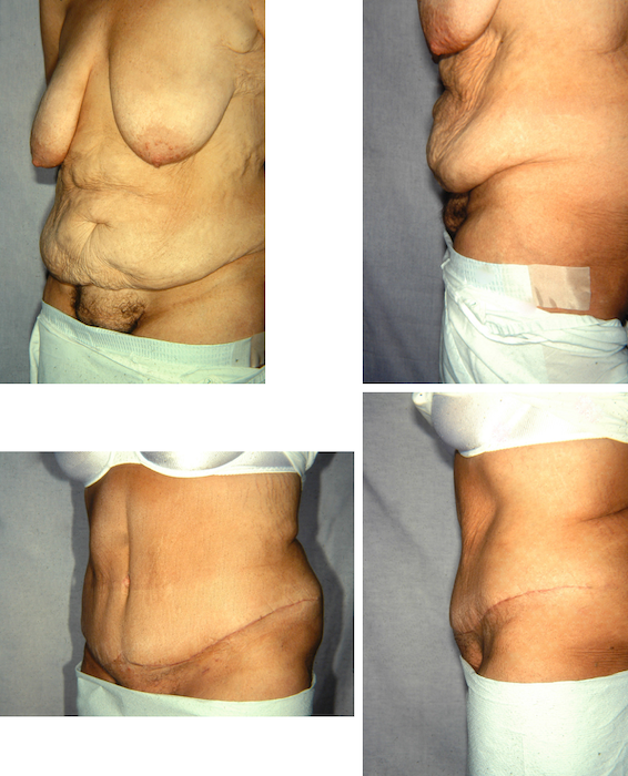 Before and after pictures of a Panniculectomy