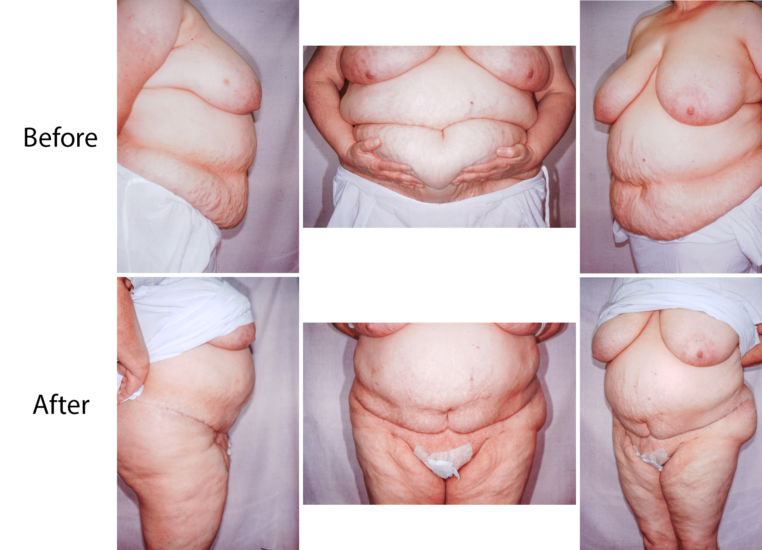 Panniculectomy before and after pictures