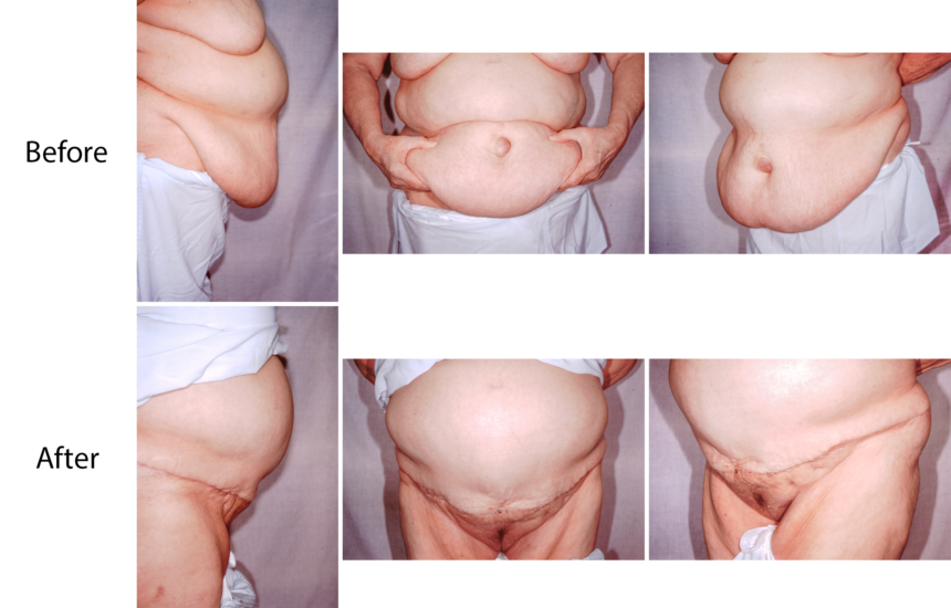 Panniculectomy photos before and after